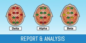 Brain Map Report